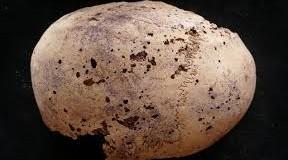 El cáncer de mama más antiguo, en una momia egipcia……