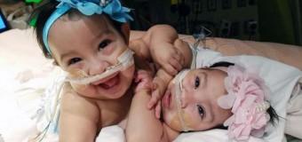 Separan dos gemelas que nacieron unidas