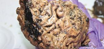 Descubren un cerebro de casi 3000 años